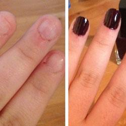 Résultat après une pose de faux-ongles sur ongles courts et abîmés