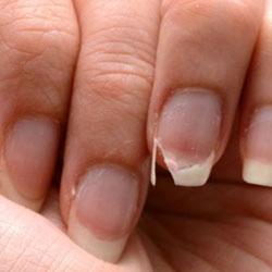 Ongle cassé de façon verticale, vers le doigt