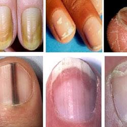 Savoir détecter les pathologie et maladies des ongles