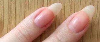 Augmenter la rapidité de croissance de ses ongles